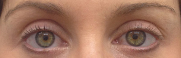 Cosmetic-tattoo-eyeliner-Before