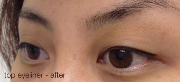 Cosmetic-tattoo-eyeliner-after-Jlau-dark-brown-1
