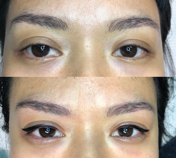 Cosmetic Tattoo Eyeliner Photos Browgame Sydney Cosmetic Tattoo