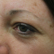 Cosmetic tattoo eyebrows before powder fill treatment