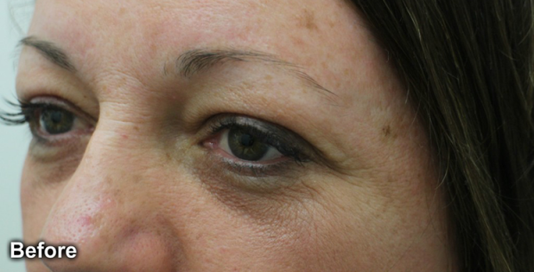 cosmetic-tattoo-RobynP_Before_brows