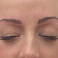 Cosmetic tattoo eyebrows after hairstoke treatment 2