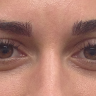 Cosmetic Tattoo Eyebrow After Partial Gap fill hairstroke treatment
