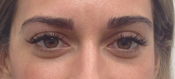 cosmetic-tattoo-eyebrow-after