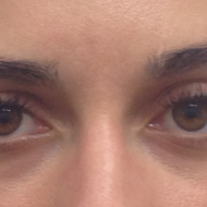 Cosmetic Tattoo Eyebrow Before Partial Gap fill hairstroke treatment