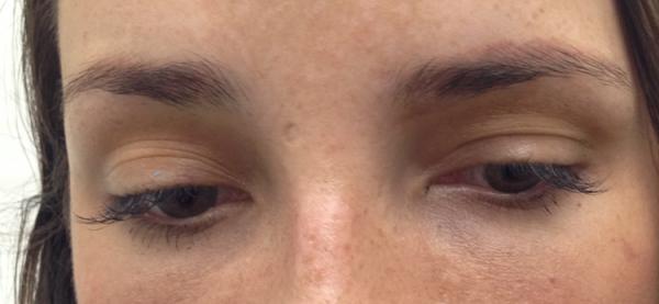 cosmetic-tattoo-eyebrow_sr_before