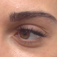 Cosmetic tattoo eyebrows after partial gap fill hairstoke treatment