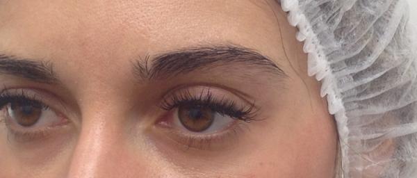 cosmetic-tattoo-eyebrow_vk_before2