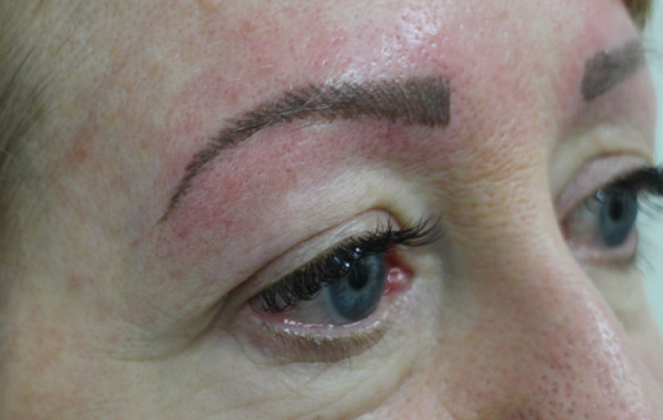 cosmetic-tattoo-eyebrows-sb-after2