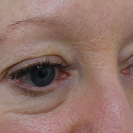 Cosmetic tattoo eyebrows before hairstroke treatment