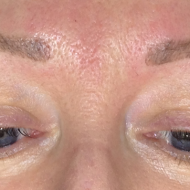 Cosmetic tattoo eyebrows after retouch hairstroke treatment