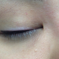 Cosmetic Tattoo Top Eyeliner After