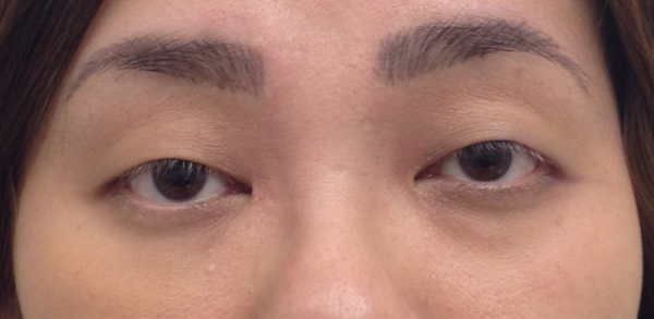 cosmetic-tattoo-eyeliner_ey_before1