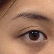Cosmetic Tattoo Top Eyeliner Before