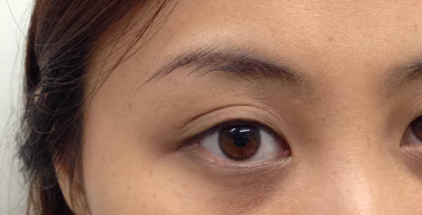 cosmetic-tattoo-eyeliner_ja_before1