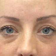 Cosmetic tattoo eyebrows after hairstoke treatment