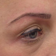 Cosmetic tattoo eyebrows immeadiately after hairstoke treatment