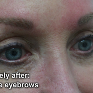 Cosmetic tattoo eyebrows immeadiately after hairstroke treatment