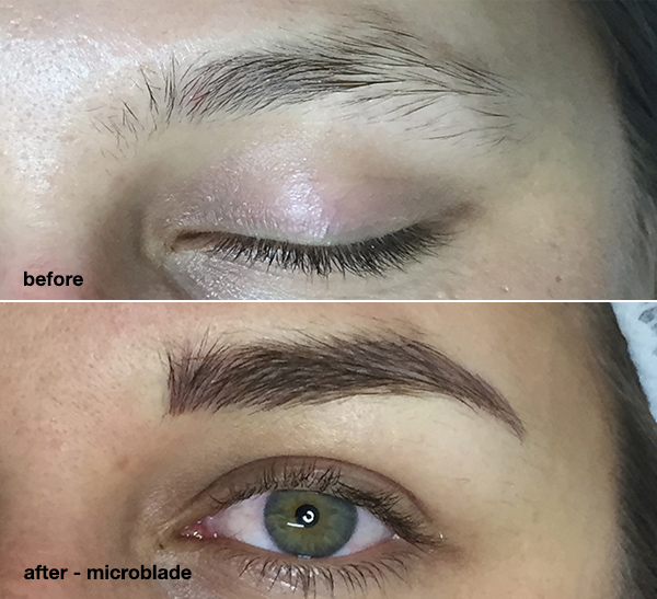 before-and-after-sydney-microblade-eyebrow-tattoo1